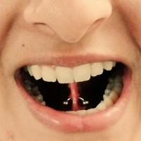 Mid Tongue Piercing